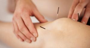 Применение иглоукалывания для лечения артроза